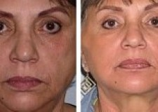 thread lift – before and after