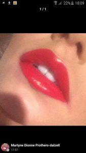 lips12
