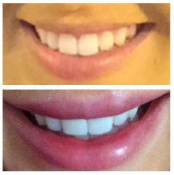 lips23